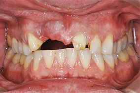 multiple-dental-issues-before