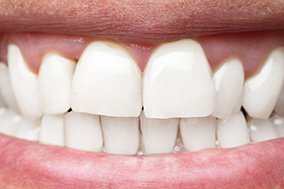 stained-teeth-after