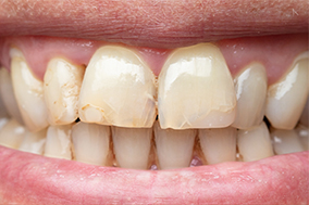 stained-teeth-before