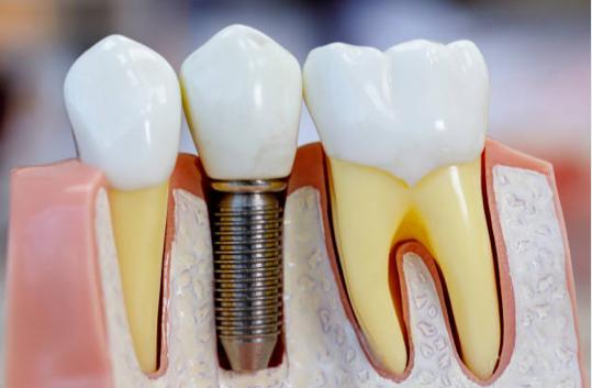 Healdsburg Dental Spa and FASTBRACES® Services Implants