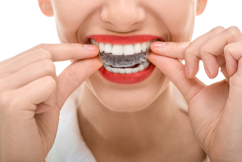 Invisalign®: The Path to Healthier Teeth